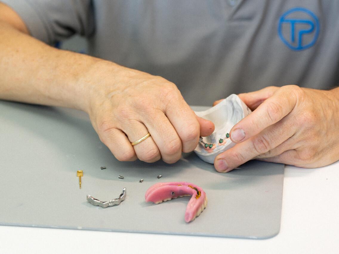 bild tp dental technik zahn labor ruesselsheim